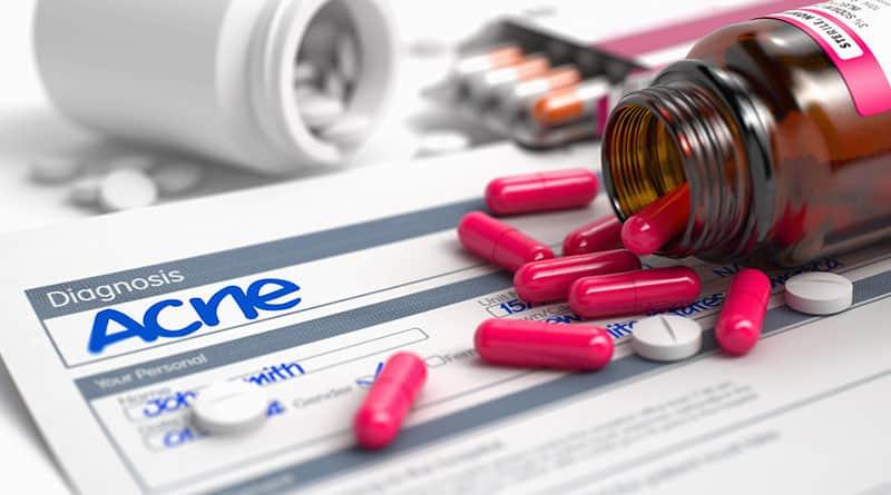 Aknen hoito antibiooteilla