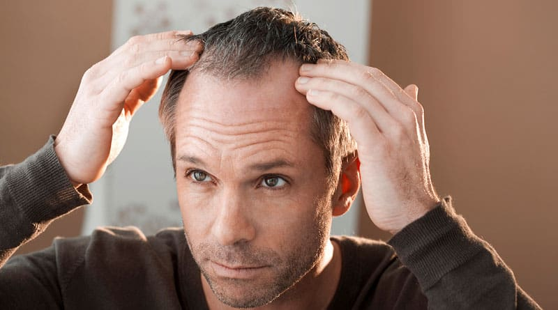 Apua miesten hiustenlähtöön