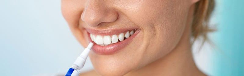 Hampaiden valkaisukynä