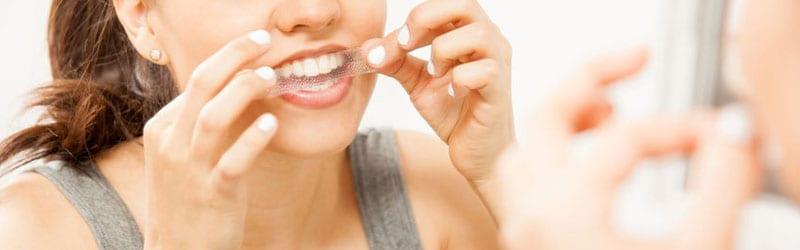 Hampaiden valkaisuliuskat